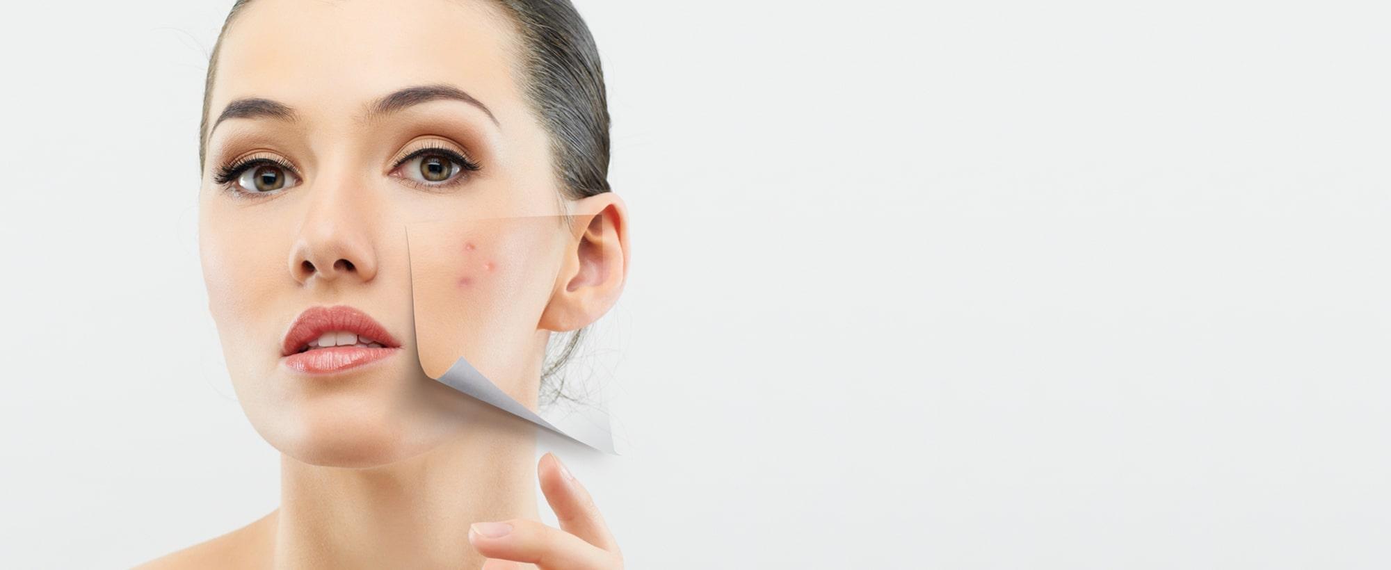 Traitements contre l'acné à Toulouse