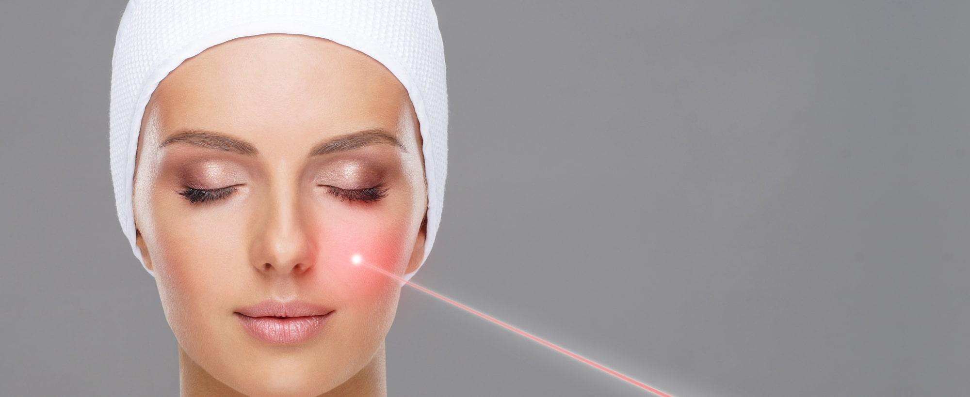 Les traitements lasers à Toulouse